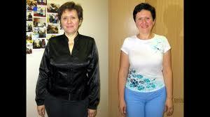 Иглорефлексотерапия в Калининграде. Установка золотой серьги.