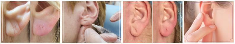 earlobe-4