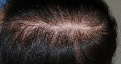 Мезотерапия волос до и после, фото