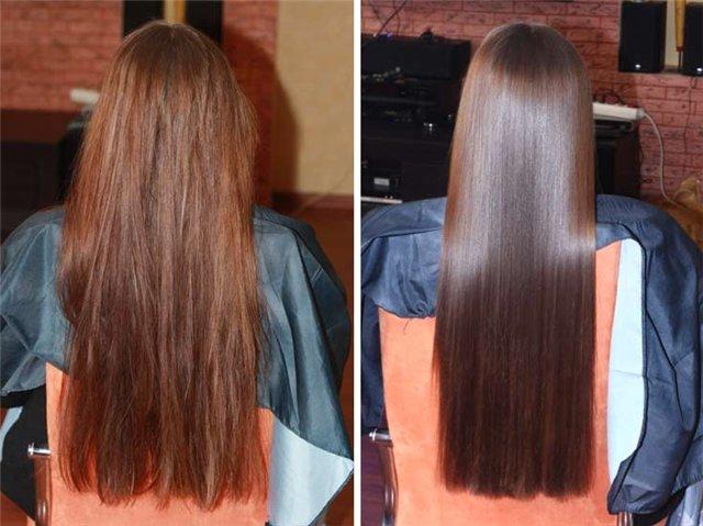 лазерное удаление волос видео