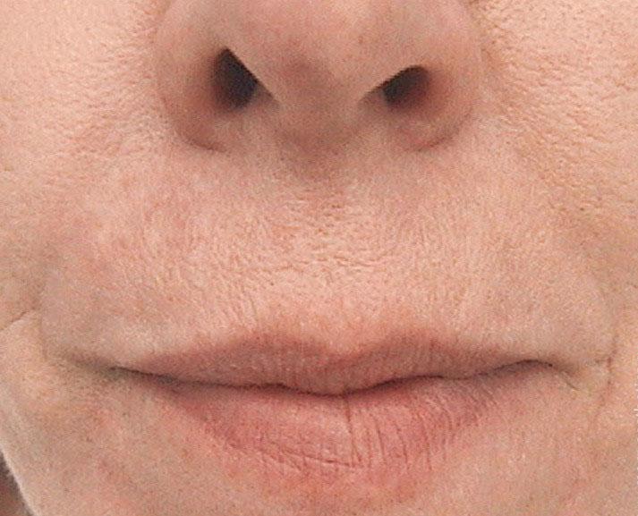 Удаление носо-губных морщин