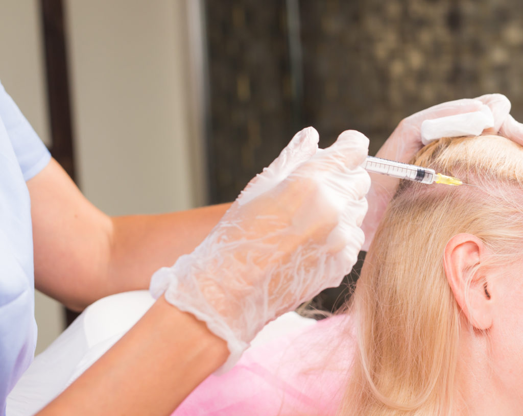 Плазмолифтинг головы