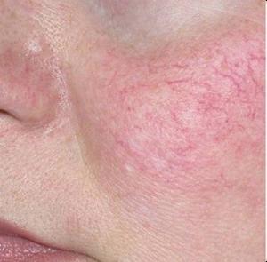 Удаление сосудов на лице неодимовым лазером